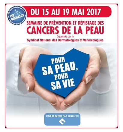 Cancer de la peau : 15 au 19 mai 2017, semaine du dépistage gratuit